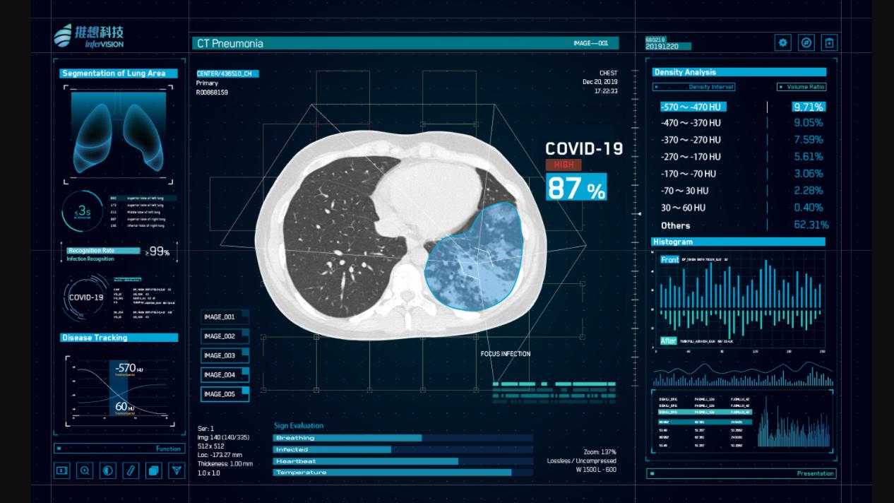 InterVision CT Bild erkennt Covid-19 -Quelle: Linkedin/ Intervision